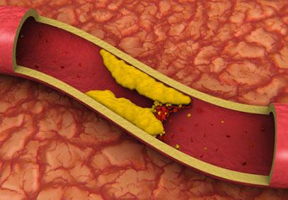 Artery Clot